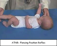 Tonic Neck Reflex Signs of aberrant or