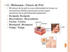  53.- Melanoma - Cáncer de Piel  El cáncer de la piel es una enfermedad en la que se encuentran células cancerosas en la...