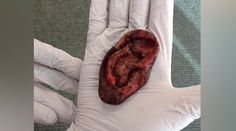 'Nothing to see ear': UK Police called over fake severed 'human' lobe  http://pronewsonline.com/pronews-blog  @MPSEnfield