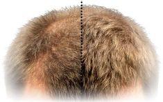 Vypadávanie vlasov je prirodzený proces, ktorý sa deje každému. Preto by vás nemalo znepokojovať zopár chumáčikov vypadaných vlasov na dlážke vkúpeľni. Možno ste otom doteraz nepočuli, no každý deň strácame vpriemere 50 až 100 vlasov. Avšak vprípade, že ste za poslednú dobu na sebe spozorovali,
