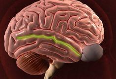 Brain's social 'river' carries clues about autism