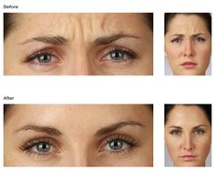 There is no downtime and noticeable results can be seen in as little as three days with Dysport injections!