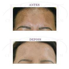 Antes e Depois – Tratamento para remoção de manchas facial - 10 sessões de Peeling de Cristal - Cliente Romilda 43 anos - Realizado na Clínica Fisest http://fisest.com.br/