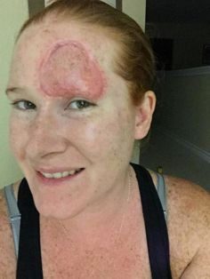 Pity, that treatments for facial skin cancer have removed