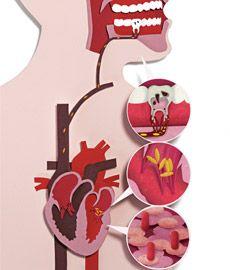 A cárie pode colocar seu coração em risco.