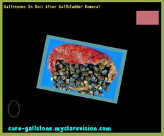 Gallstones In Duct After Gallbladder Removal 145409 - Cure Gallstone