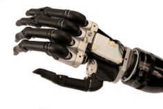 Myoelectric bionic hand looks ace, changes lives in video
