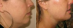 4 Exercises to reduce double chin and chubby cheeks