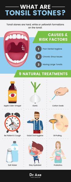 Tonsil stones natural treatments http://www.draxe.com #health #holistic #natural