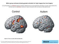 teoría infraconectividad autismo