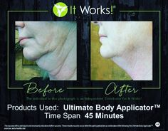 The wraps can go anywhere from the chin down!  I am going to wrap my chin this Wednesday!  Look at the results for this lady!