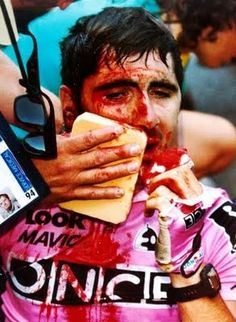 Laurent Jalabert, Tour de France 1994.  He cracked a tooth and broke his nose in a fall.  Oh, and he finished the stage and tour.