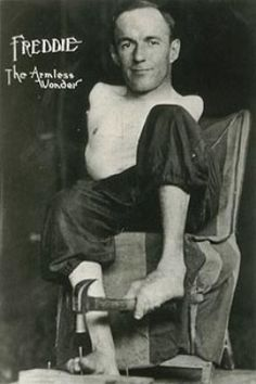 Frank Esele (1900-unknown) was known as 'Freddie the Armless Wonder'.  He was born without arms and had severe curvature of the spine; he was only 4'6''.  He worked for Barnum and Bailey's Circus and at Coney Island.