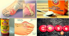The number of people suffering from gout and arthritis is constantly increasing. The cause is the high amount of uric acid that accumulates around the joints. This, in turn, causes debilitating joint pain that interferes with daily activities. So, if you like to reduce your gout and arthritis pain, you need to learn how to remove uric acid in joints. Let's start from the beginning. The breakdown of purine ( an ingredient in many foods) stimulates the production of uric acid. The produced…