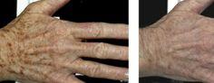 Fotoodmładzanie skóry laserem Fraxel.. Zdjęcie przed i po serii zabiegów laserem Fraxel.