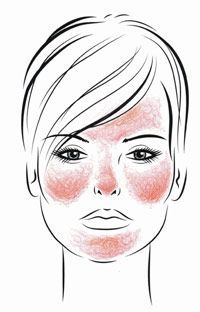 Rosacea for the Esthetician: A Comprehensive Guide—Part II | SkinInc.com