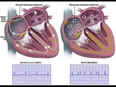 Aritmie cardiaca 1
