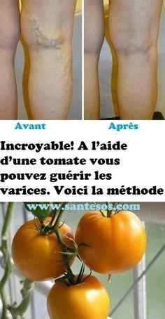 Incroyable! A l'aide d'une tomate vous pouvez guérir les varices. Voici la méthode