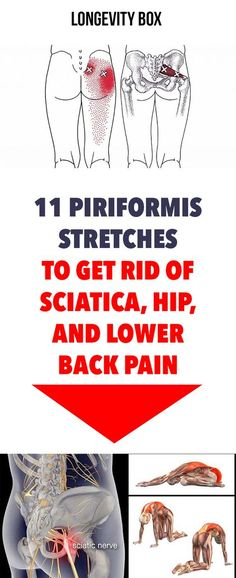 11 Piriformis Stretches to Get Rid of Sciatica, Hip, and Lower Back Pain Sciatic Nerve Relief, Sciatic Pain, Back Pain Remedies, Natural Headache Remedies, Arthritis, Sciatica Stretches, Hip Stretches, Flexibility Exercises, Piriformis Exercises