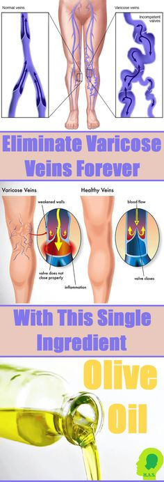 Eliminate Varicose Veins Forever with This Single Ingredient - Home Health Solution