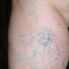 Five Effective Natural Cures For Spider Veins