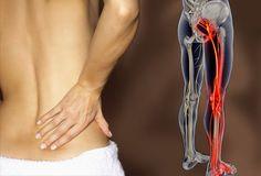 Do You Have Sciatica Hip Pain?