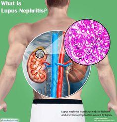 What is Lupus Nephritis? Lupus Nephritis, Abdominal Pain, Autoimmune Disease, Fibromyalgia, Health Remedies, Immune System, Blood, Sisters, Fitness