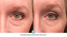 Nerium created a state-of-the-art, transfomative Age-Defying Eye Serum  With our 30-Day Money Back Guarantee you can try it with no risk. http://www.nerium.com/shop/glbarnes/face