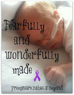 This looks like Brady! Micro Preemie, Preemie Babies, Preemies, Premature Baby, Nicu Quotes, Preemie Quotes, World Prematurity Day, Neonatal Nursing, Prayer For Baby