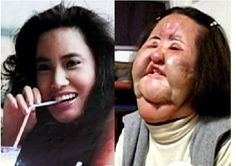A former Korean model addicted to plastic surgery injected cooking oil into her face when doctors refused to perform any more cosmetic operations on her Hang Mioku now ab. Plastic Surgery Before After, Plastic Surgery Gone Wrong, Korean Plastic Surgery, Celebrity Plastic Surgery, Skin Care Regimen, Skin Care Tips, Plastic Surgery Procedures, Korean Makeup Tutorials, Photoshop