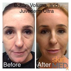 Juvederm Voluma is the newest filler in the Juvederm family and is used to add volume to the cheek area—we have been waiting for this product for a long time. Cheek Fillers, Facial Fillers, Botox Fillers, Dermal Fillers, Eye Dermal, Liquid Facelift, Under Eye Fillers, Hyaluronic Acid Fillers, Dark Spots On Skin