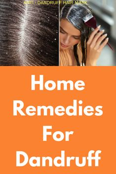 Home Remedies For Dandruff Are you tired and embarrassed by seeing dandruff in your scalp eve Home Remedy Teeth Whitening, Teeth Whitening System, Natural Teeth Whitening, Home Remedies For Dandruff, Hair Remedies For Growth, Hair Growth, Natural Remedies, Hair Mask For Dandruff, Top