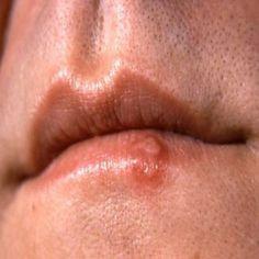 Lip Blisters