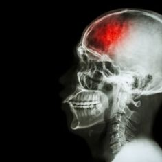 Stroke: Know These 4 Lifesaving Tips