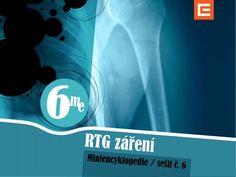 Miniencyklopedie 6 RTG záření Informace o tom, jak bylo RTG záření objeveno, jaký je fyzikální proces jeho vzniku, jak funguje rentgenka i jak se dnes RTG záření využívá.