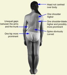 Scoliosis signs -   ~~ sadly, this is so me.  Plus if you look like this, you walk a bit strangely.  But, that cannot be helped when your body is this crooked.