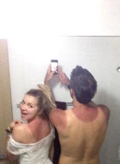 Sunburn Remedy-overnight healing and instant pain relief. Should've listened to mom... :(