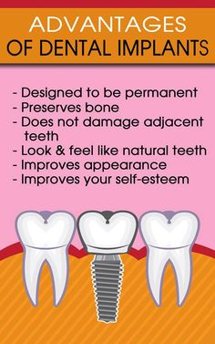 http://www.aureliadds.com/dental-implants/ #dentistrochesterhills #brushyourteeth