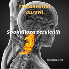 Spondiloza cervicală. Variante de tratament Health Advice, Health Remedies, Metabolism, Good To Know, Natural Remedies, Health Fitness, Workout, Healthy, Learning