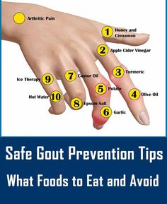 best diet for gout patients what foods cause gout symptoms foods that affect uric acid