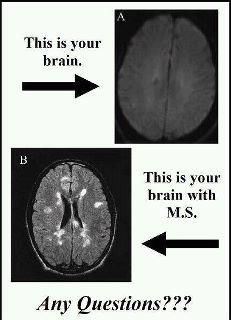 "Multiple Sclerosis- reminds me of the ""this is your brain on drugs commercial, made me giggle and since my Brain looks like the bottom pic I reserve the right to giggle :)"