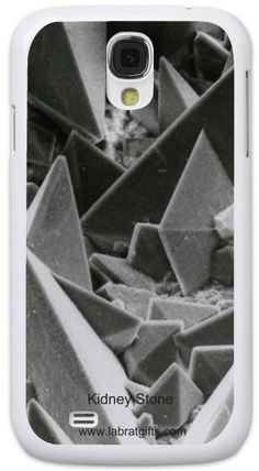 Amazing Exclusive SEM Collection - Kidney Stone, Samsung Galaxy S4 Case!