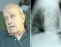 When 75-year-old veggie lover Ron Sveden of Brewster, Mass. began suffering from pneumonia and other problems, he sought medical attention. An X-ray revealed a suspicious growth that doctors suspected was cancer. But samples of the mass revealed that it was actually a pea plant that had sprouted in his windpipe. Sveden recovered after doctors removed the plant. (WHDH)