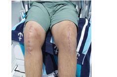My knee pic