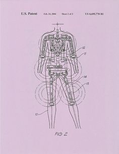 Bionics: Patent Diagram