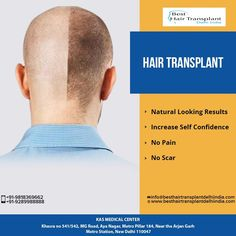Get back your confidence and self esteem with Hair Transplant. Dr. Ajaya Kashyap uses latest hair transplant technique to ensure that the procedure is copletely safe, painless and does not leave any scars. Take Video Consultation with our doctor from the comfort of your home. To book an appointment for Video Consultation Call or Whatsapp: +91-9958221982 Web: www.besthairtransplantdelhiindia.com #FUEHairTransplant #HairTransplantation #HairTreatment #Eyebrow #Eyelash #Beard #Moustaches