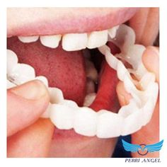 A denture is a removable dental appliance replacement for missing teeth and surrounding tissue. They are made to closely resemble your natural teeth and may even enhance your smile. Teeth Braces, Dental Teeth, Dental Care, Braces Smile, Teeth Implants, Dental Implants, Dental Surgery, Young Living, Dental Health