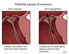 "The term heart ""murmur"" refers to a different sound. A murmur is an abnormal extra sound that can be heard through a stethoscope. Heart Murmur Symptoms, Heart Disease Symptoms, Heart Structure, Heart Valves, Normal Heart, Heart Muscle, Muscle Tissue, Cardiology, Feel Tired"