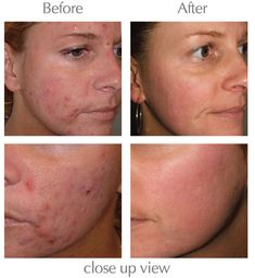 Before And After Retin A Tretinoin