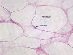 Adipose tissue is a loose connective tissue. Adipose tissue is formed from a cluster of fat cells (Adipocytes). Adipocytes have cytoplasm around the central fat globule. The cytoplasm houses enzymes that build and break fat molecules. Microscopic Photography, Adipose Tissue, Anatomy And Physiology, Good Fats, Student Life, Nursing Students, Best Weight Loss, Lose Belly Fat